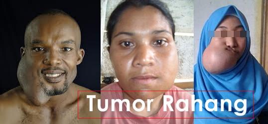 Hasil gambar untuk qnc untuk tumor rahang
