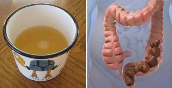 Cleanse Your Colon Naturally