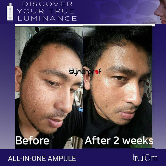 Jual Serum Penghilang Jerawat Trulum Skincare Sahu Timur Halmahera Barat