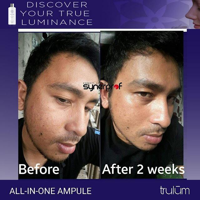 Jual Serum Penghilang Jerawat Trulum Skincare Maginti Muna
