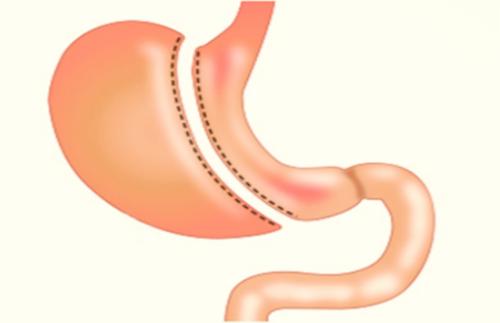 aumento de peso despues de manga gastrica