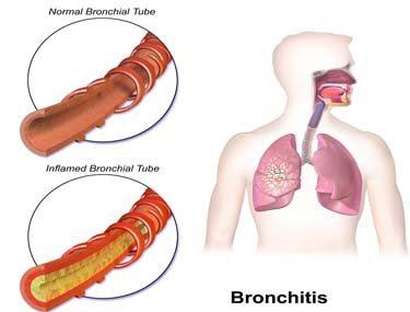 bronkitis pada kanak- kanak, cara atasi bronkitis,pulihkan bronchitis, petua pulihkan bronkitis, cara rawat bronkitis