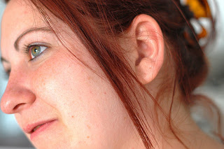 How Can I Reduce Rosacea Pimples Naturally