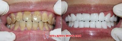 những điều cần biết về bọc răng sứ -2