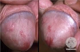 Penyakit Sifilis Beserta Gambarnya