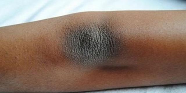 3 Cara Mudah Menghapus Kulit Kering dan Warna Gelap di Siku dan Lutut