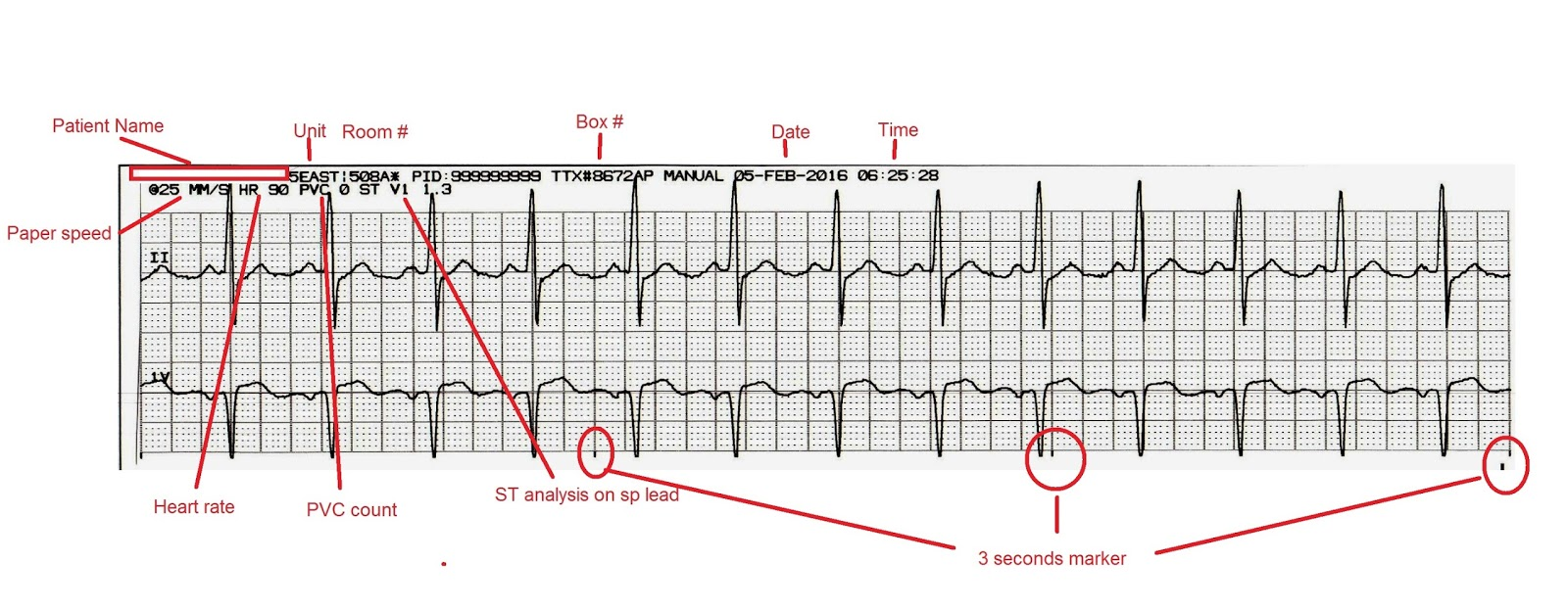 image regarding Printable Ekg Strips called ECG Rhythms: Discovering ECG interpretation in just Telemetry Devices # 1