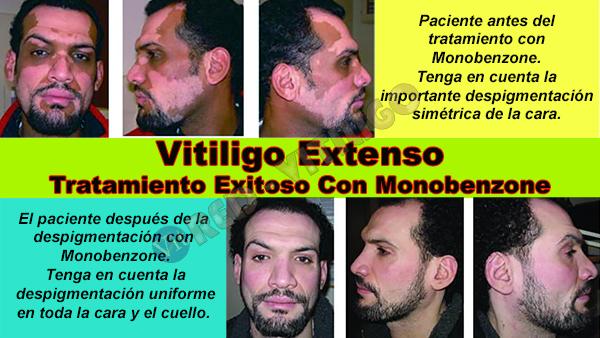 Tratamiento exitoso de Vitiligo extenso con Monobenzone