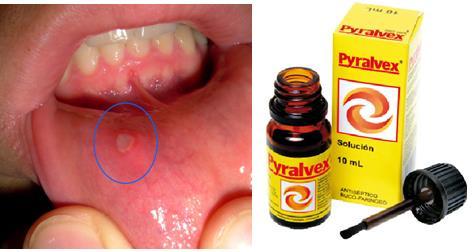 Pyralvex sirve para quitar las llagas, úlceras, fuegos en la boca. (Muguet, afta, candidiasis oral)
