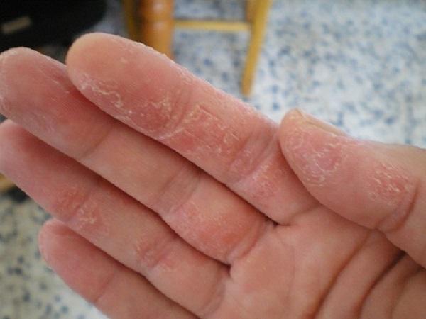 Bệnh chàm khô ở tay và cách điều trị hiệu quả