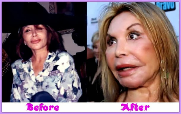 Plastic surgery gone wrong | Scary/weird stuff | Pinterest  |Plastic Surgery Procedure Gone Wrong