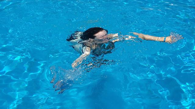 Una mujer queda parcialmente ciega tras meterse en una piscina con sus lentes de contacto