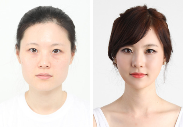 Best Korean Eye Surgery
