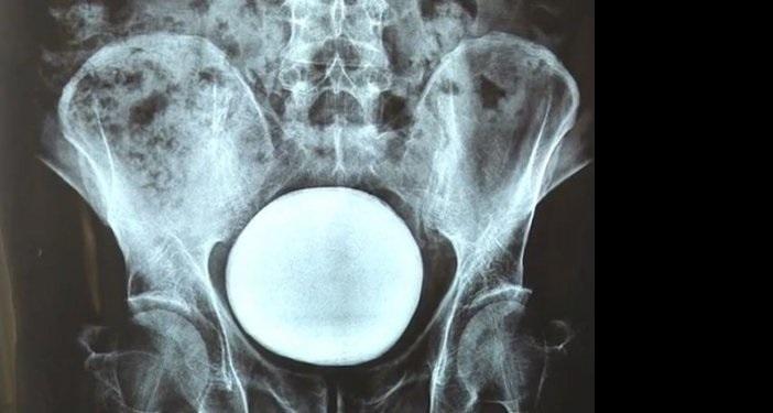 Γιατροί αφαίρεσαν μια πέτρα μεγέθους γκρέιπφρουτ από μια  ουροδόχο κύστη ενός  Κινέζου