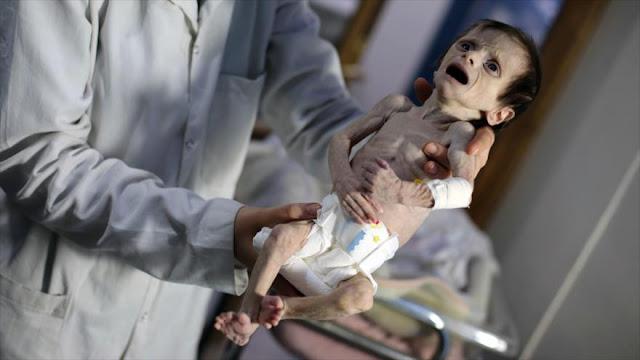 Unicef: Más de 1100 niños en Damasco sufren desnutrición
