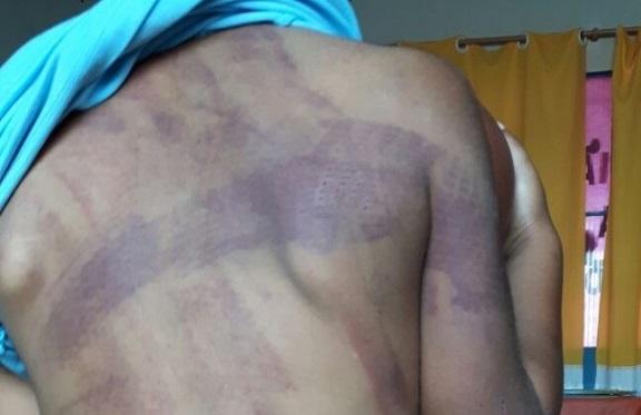 Menino de 4 anos é espancado pela mãe e pelo padrasto em Rondominas e Jaru