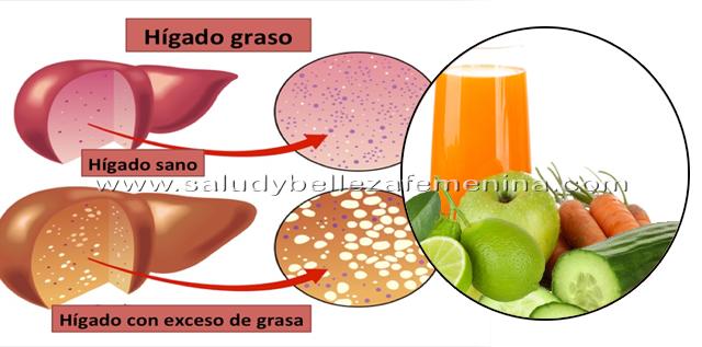 Bebidas naturales para eliminar higado graso , es necesario para todo el mundo desintoxicar el cuerpo de vez en cuando. La desintoxicación permitirá que tu hígado funcione de manera eficiente.