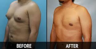 http://www.vikramsclinic.com/gynecomastia-correction-surgery.html