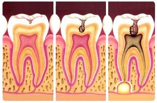 Dibujo de las caries dentales a colores para niños