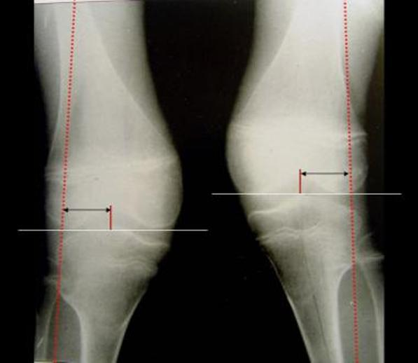 Knock Knees or Genu valgum on Xray