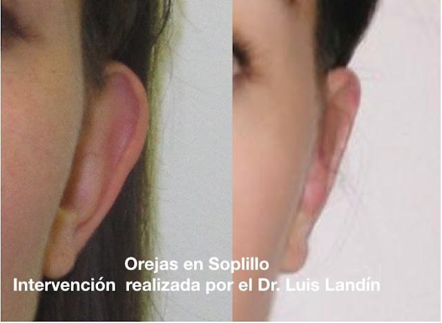 La imagen muestra resultados antes y después de una intervención de orejas en soplillo realizada por el Dr. Luis Landin