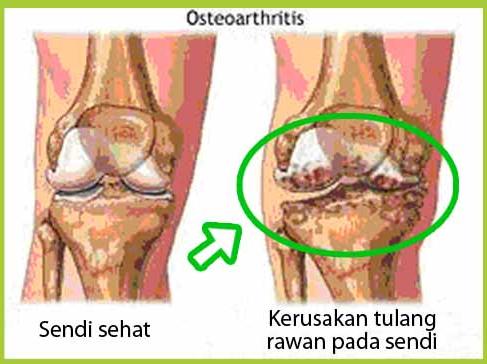 Penyakit Osteoarthritis: Pengertian, Gejala, Penyebab, Ciri, Terapi dan Pengobatannya