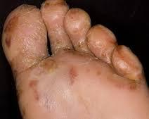 Herbal obat untuk penyakit eksim menahun di kaki