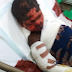 Little girl left with serious burns after receiving an injection from a nurse in Imo