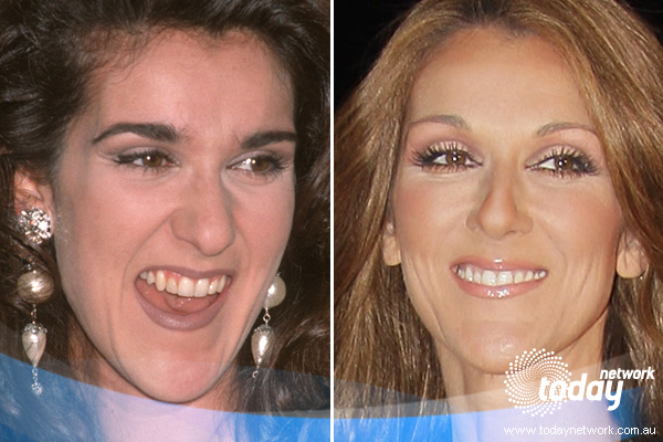 Celebrity Before And After Celine Dion Before And After