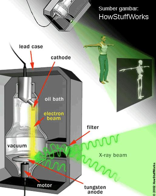 cara kerja mesin sinar-X untuk foto Rontgen