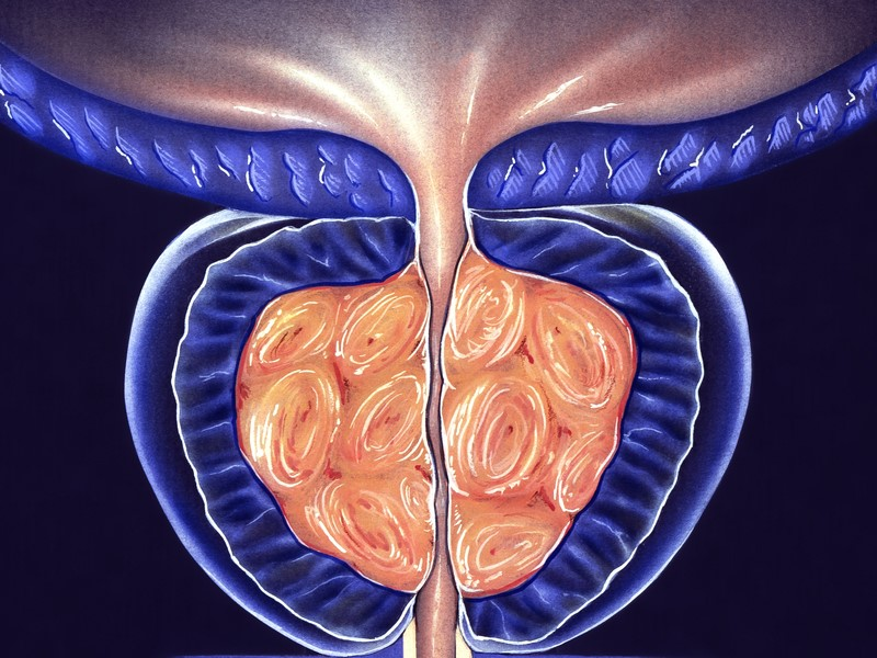UTI después de la extracción de próstata