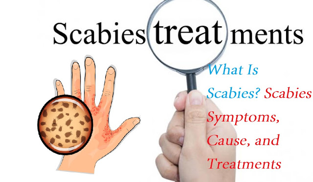What Is Scabies? Scabies Symptoms, Cause, and Treatments