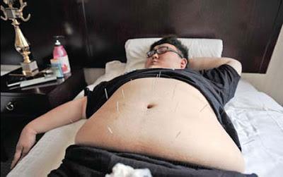 acupuntura para bajar de peso, acupuntura bajar de peso
