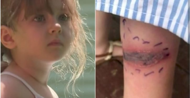 A Little Girl Discovers A Dangerous Stain On Her Leg