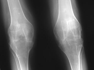 Cara Mengobati Tulang Retak di Kaki