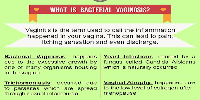 Bacterial Vaginosis, Health, Health Fact, Naturally Treat, Simple Ingredients, home remedies, tea, yogurt, neem powder, cold water, turmeric, garlic, vegetable juice, tracheal, cedar oil, Articles, Slider,