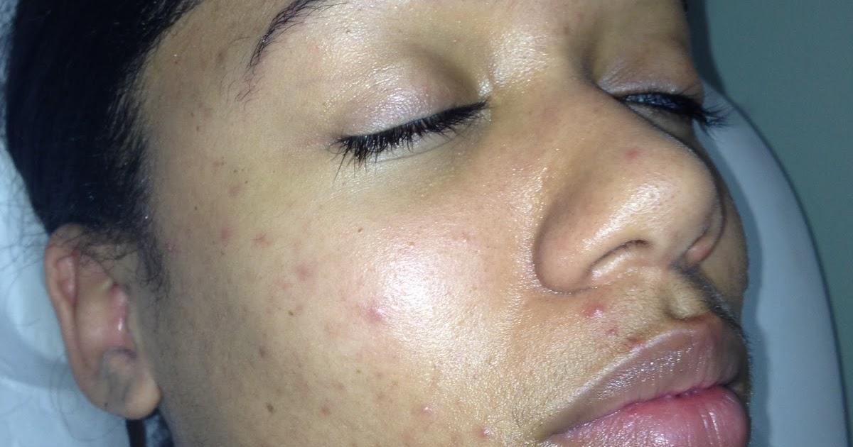 pilule contre acné 2015 99