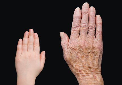 Important Things to Know about Wrinkly Skin Syndrome ... |Wrinkly Skin