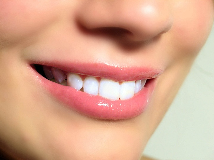 Kiat agar Memiliki Senyum Segar dan Menawan