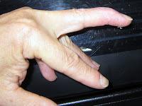 まだ伸びきらないマレット指