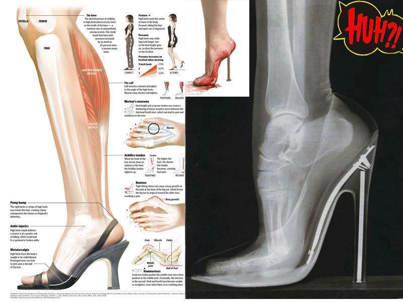 Image result for keburukan kasut tumit tinggi