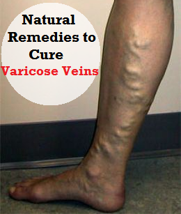 Natural Remedies to Cure and Prevent Varicose Veins