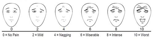 写真:顔痛みスケール