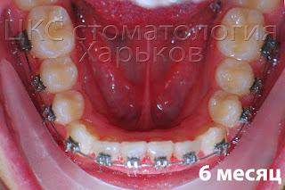 Шестой месяц лечения брекетами. Признаки улучшения положения зубов
