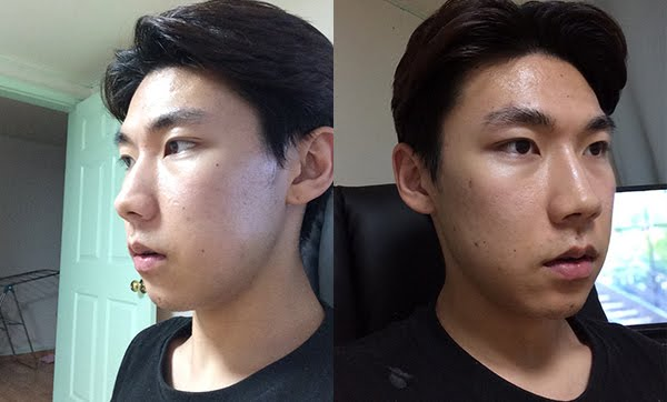 짱이뻐! - Korea Plastic Surgery Review From Wonjin Model