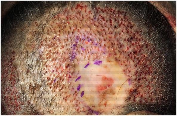 Posibles reacciones del implante capilar