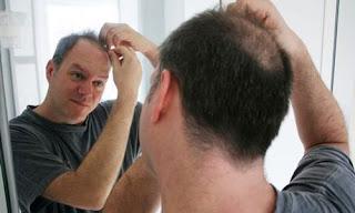 hair loss treatment natural