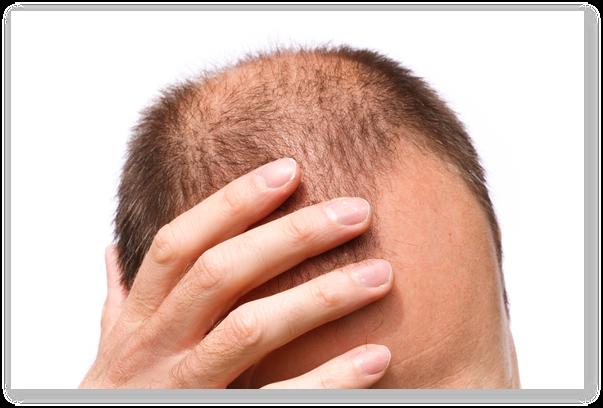 Tipuri de alopecii si tratamente pentru incetinirea ei