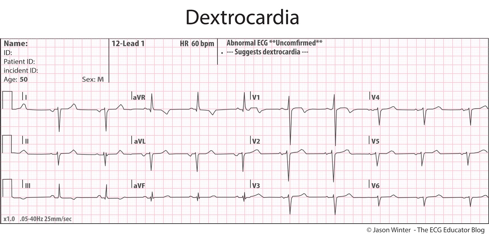 Ecg Educator Blog Dextrocardia Block Diagram Above Shows Left Sided Recorded Of A Patient With Situs Inversus
