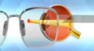 Nano Retina